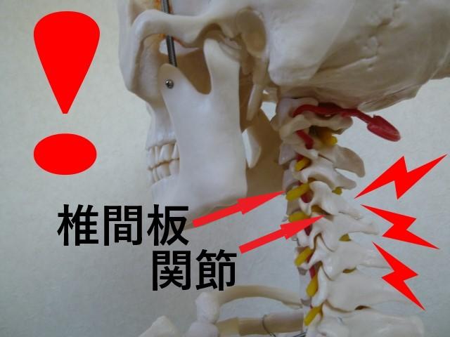 首コリの原因